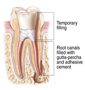 Root Canals at Puyallup Pediatric Dentistry